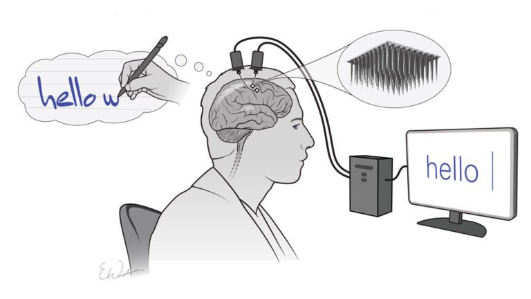 Brain to Text Communication: Visualized Letters of a Paralyzed Person into Text on a Screen