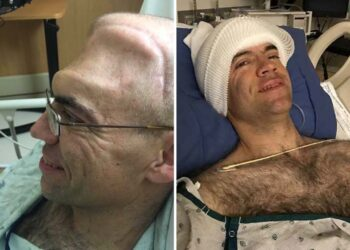 Michael Moyles Brain Cancer: Expected to survive for 6 years, yet he survived for 20+ years, defeating cancer five times