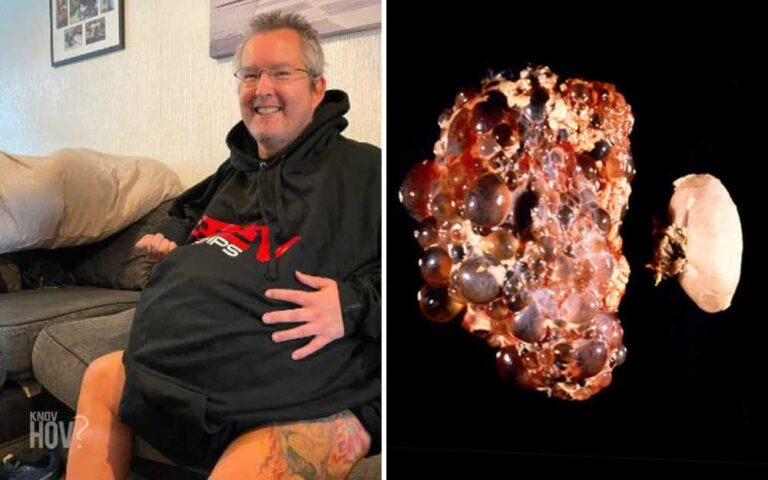 Warren Higgs, with Record-breaking Kidneys, Grew up to an Estimated 40kg due to Polycystic Kidney Disease